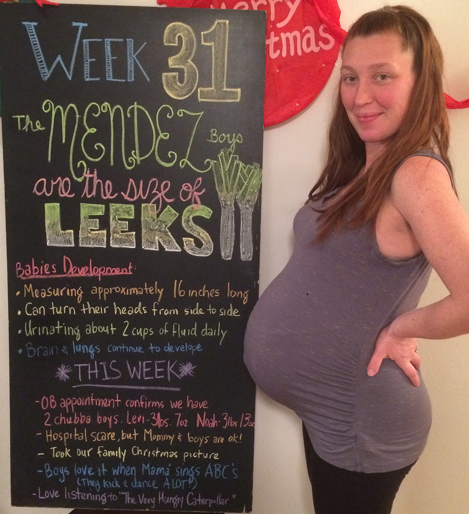 31 week twin belly