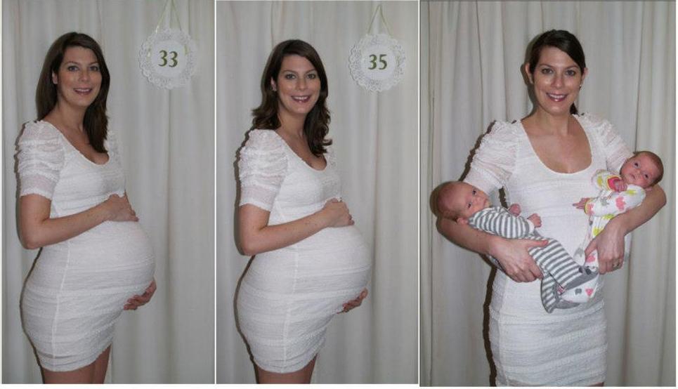 Второй и третий триместр самые сложные для многоплодной беременности.